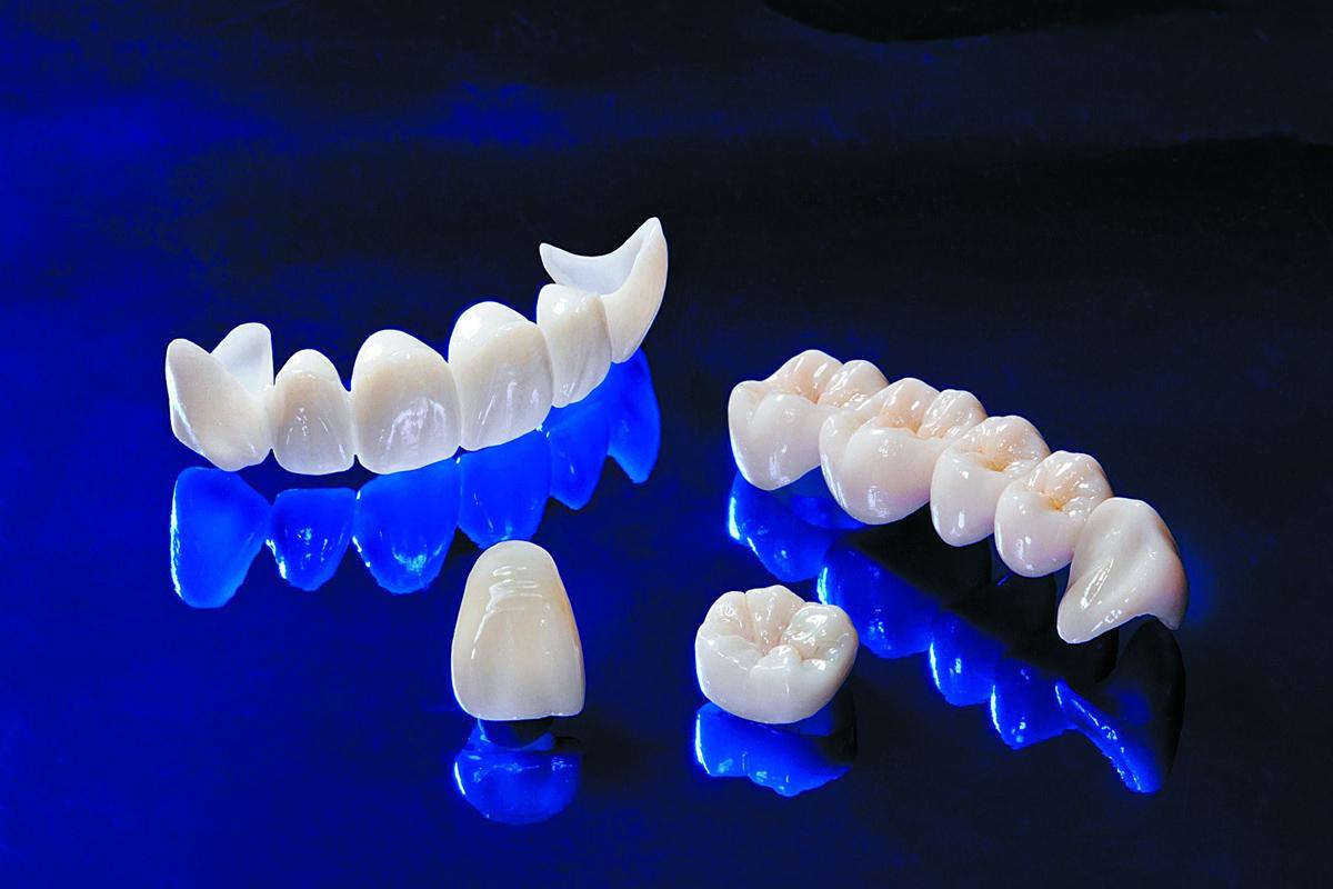 Какие бывают зубные коронки