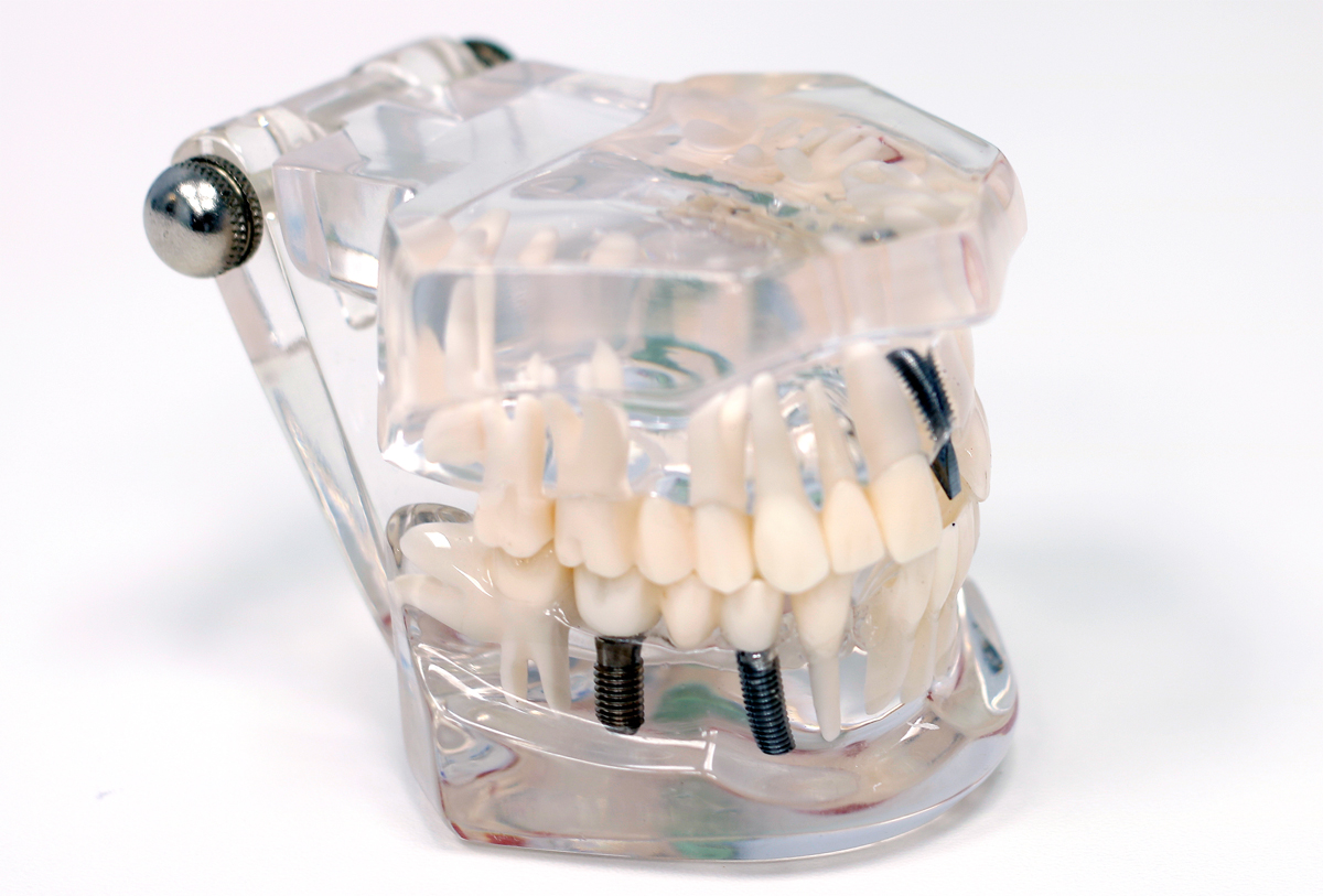 Самым прогрессивным методом восстановления зубов является имплантация