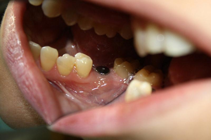 Результат имплантации и протезирования зубов